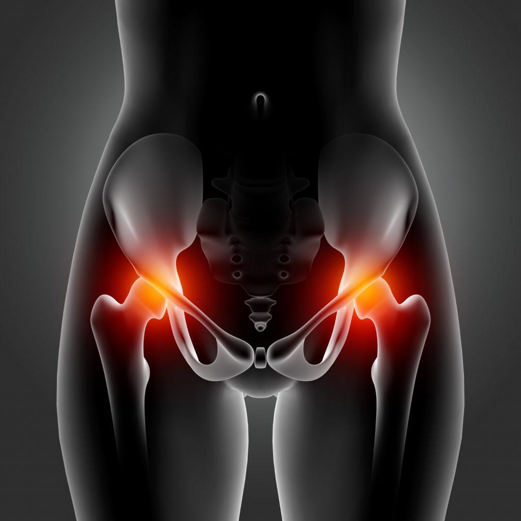 Hip Osteonecrosis